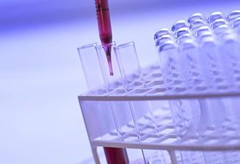 VIH/Sida : plus d'un tiers des découvertes de séropositivité sont trop tardives
