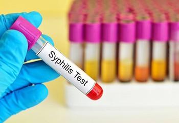 La syphilis fait un bond de 70% en Europe