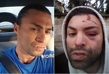 « Le policier a dit que c'était de notre faute » : Safir raconte son agression homophobe à Lille