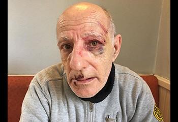 Roué de coups, Dominique, 63 ans, raconte l'agression homophobe dont il a été victime